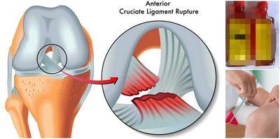 Cara Sembuh Dari Cedera Ligamen Cruciatum ini, ligamen terbesar di tungkai